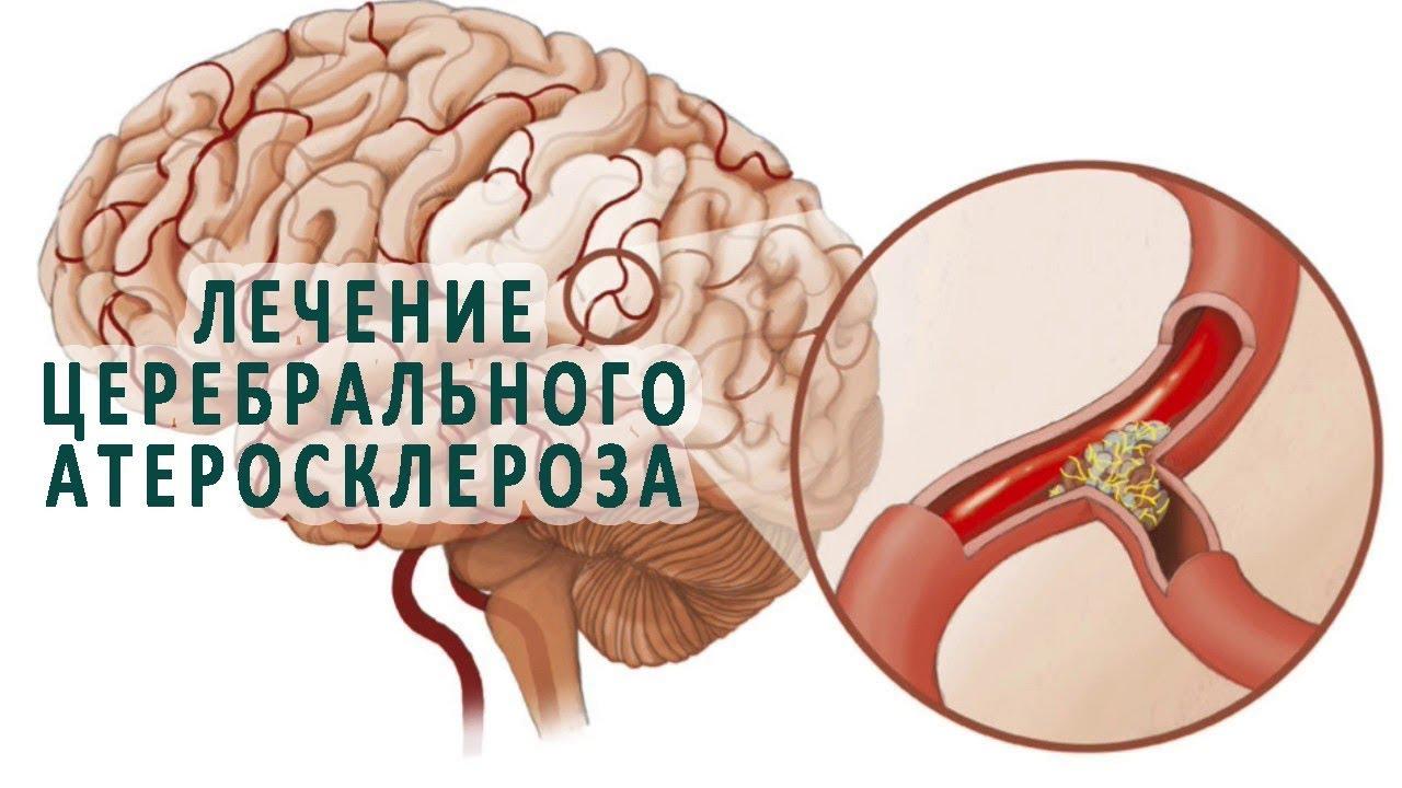лечение церебрального атеросклероза