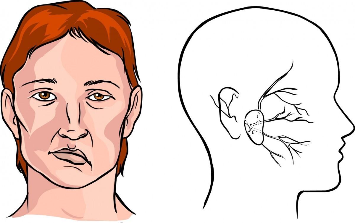 внешние признаки инсульта